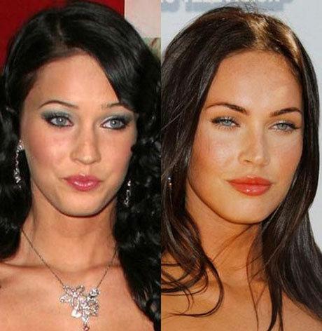 пластика до и после звезды фото