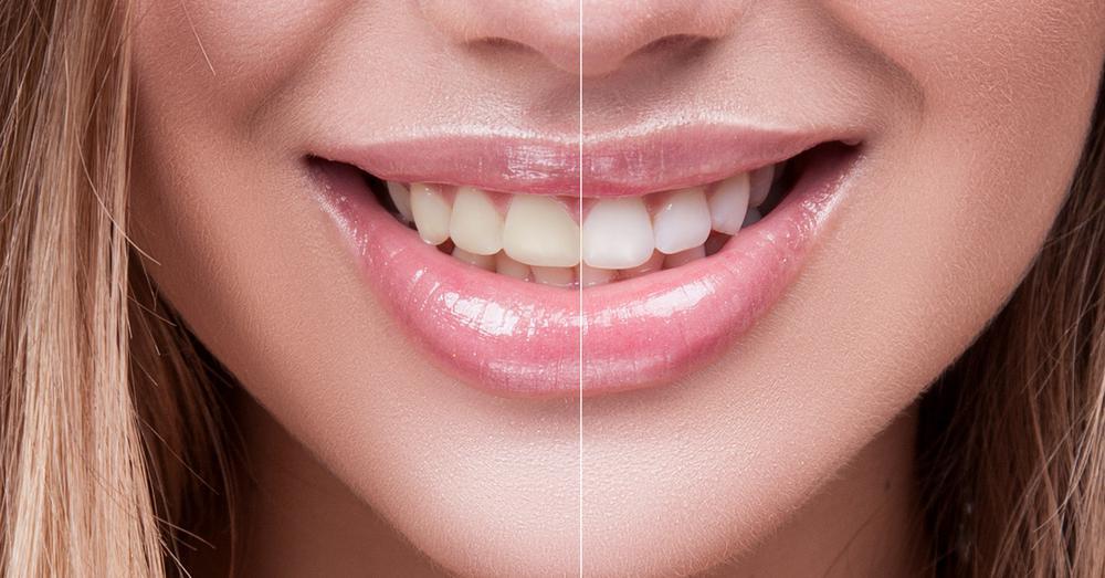 Вам моложе отбеливание зубов
